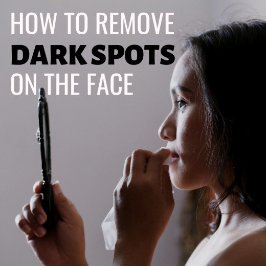 Easy way how to remove dark patches on skin